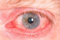 glaucoom voorbeeld